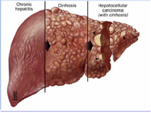 Цирроз печени и хронический гепатит как лечить